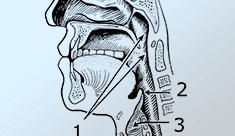 Más allá de la laringectomía