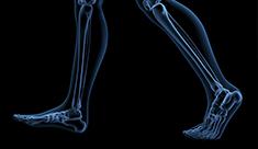 L'osteoporosi: una seqüela freqüent després del càncer