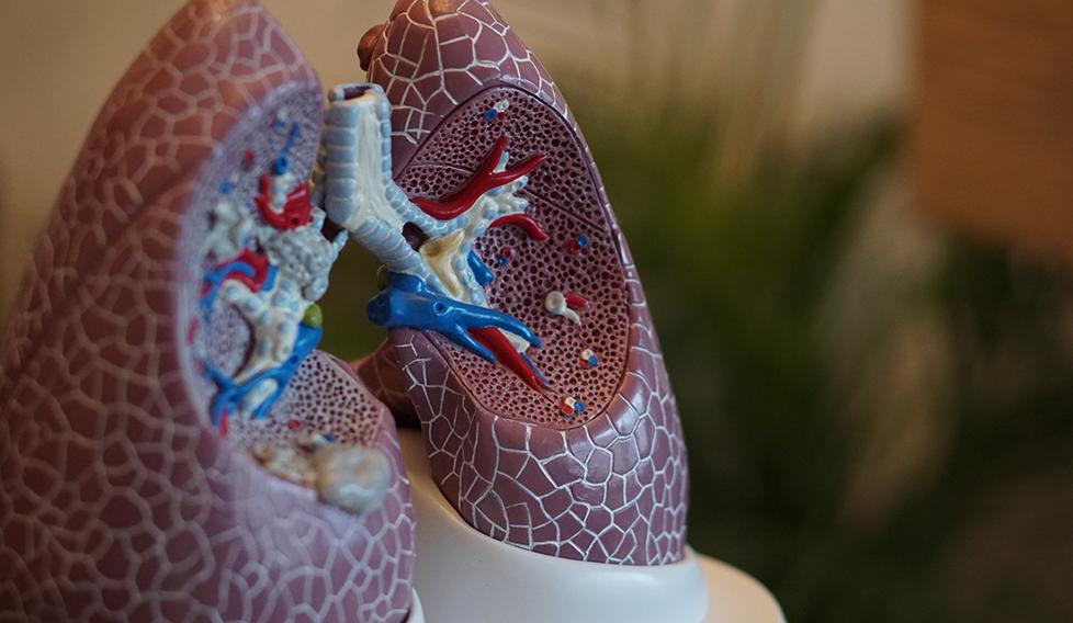 Després del càncer de pulmó: consideracions sobre la radioteràpia